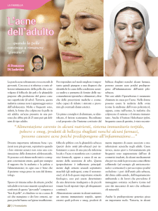 L`acne dell`adulto
