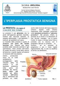 prostata iperplasia nodulare